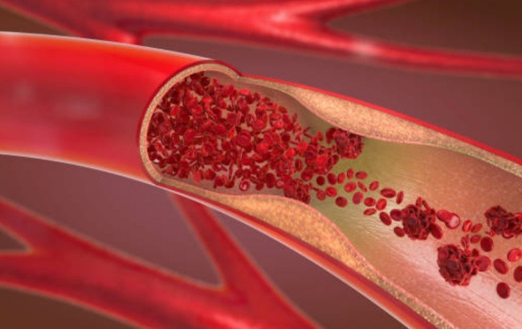 Кровь анемия лечение